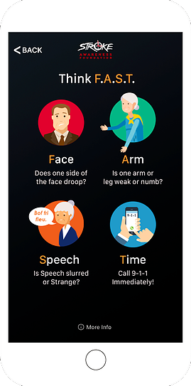 Think FAST, Face, Arm, Speech, Time