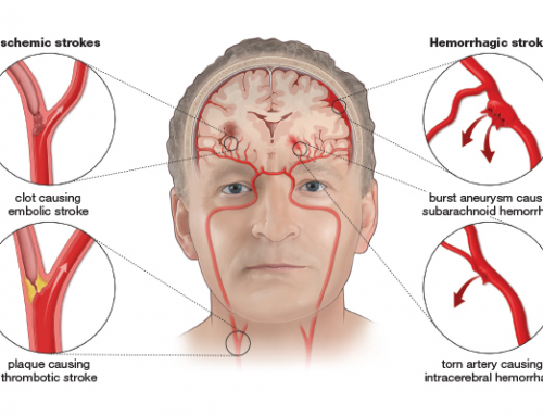 Stroke Facts & Statistics