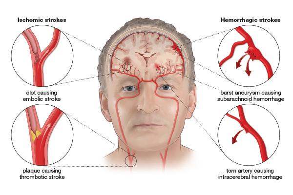 Stroke Facts & Statistics - Stroke Awareness Foundation